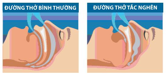 Mối quan hệ giữa chứng ngưng thở khi ngủ và bệnh tim 1